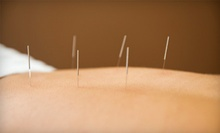 One or Two Acupuncture Treatments with Examination at Acupuncture and Holistic Medicine Healing Center (Up to 78% Off)