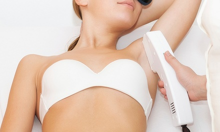 $230 for One Year of Unlimited Laser Hair Removal for Up to Six Areas at MI Body Contour ($7,200 Value)