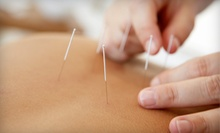 One Regular Acupuncture Session or Three Cosmetic Acupuncture Sessions at The Birch Center for Health (Up to 60% Off)