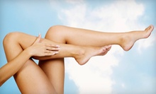 Two, Four, or Six Laser Spider Vein Removal Treatments at Hair Free Laser Center (Up to 56% Off)