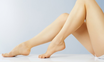 One, Two, or Three Half-Spider-Vein Sclerotherapy Treatments at The Vein Doctor (Up to 55% Off)