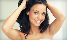 Six Laser Hair-Removal Treatments for a Small, Medium, or Large Area at Amazing Skin (Up to 85% Off)