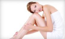 Six Laser Hair-Removal Treatments on Small, Medium, Large, or Extra-Large Area at Body & Soul Clinic (Up to 91% Off)