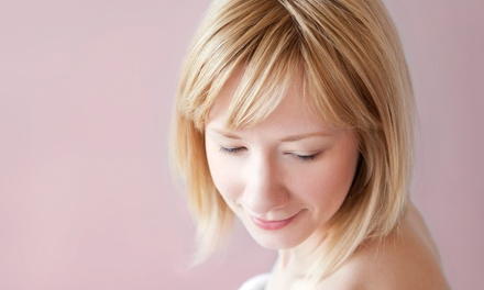 One or Two Microdermabrasion Treatments or Chemical Peels at SpaDerma (Up to 69% Off)
