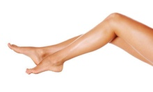 Two, Four, or Six Laser Spider-Vein Removal Treatments at Skin Embrace Medical Spa &amp; Laser Center (Up to 77% Off)