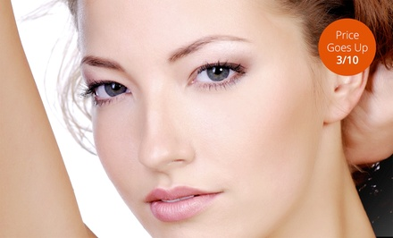 One or Two IPL Photofacials at SpaDerma (Up to 77% Off)