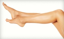 $99 for Two Laser Spider-Vein Removal Sessions at Integrative Foot & Ankle Center ($600 Value)