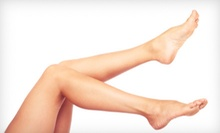 Three or Four 15-Minute Laser Spider-Vein Removal Treatments at Silk Skin Laser Center (Up to 79% Off)