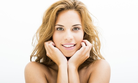 20 Units of Botox at SkinMD (58% Off)