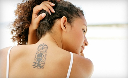 Three Laser Tattoo-Removal Sessions on Area Up to 3, 6, or 12 Square Inches at Skin Laser Center (Up to 73% Off)