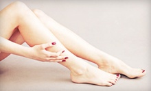 Two, Four, or Six Laser Spider-Vein-Removal Treatments at Miracle Laser & Skin Care Institute (Up to 93% Off)