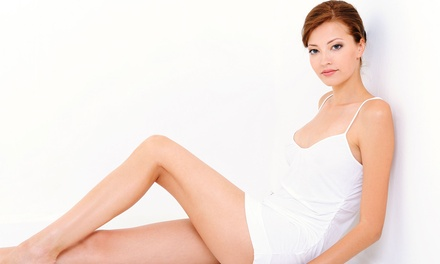 Six Laser Hair-Removal Treatments on a Small, Medium, or Large Area at Sanctuary DermaSpa (Up to 85% Off)