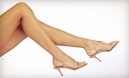 $99 for a Spider-Vein Treatment at Aspire Medical & Day Spa ($600 Value)