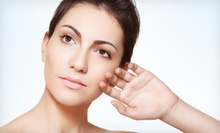 Medical-Grade Microdermabrasion Treatment with Optional Hydroderm Infusion Treatment at vivaMD (Up to 63% Off)