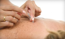 One or Three Acupuncture Treatments with Initial Consultation at Jennifer Shulman Acupuncture (Up to 72% Off)