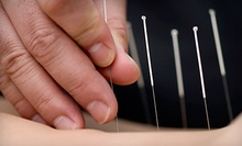 One or Three Acupuncture Treatments at Acupuncture Together in Cambridge (Up to 67% Off)