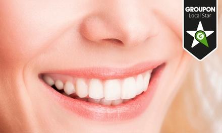 Dentolux — Carcavelos: limpeza dentária e destartarização com opção de branqueamento LED desde 14€