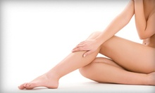 Two, Four, or Six Laser Spider-Vein-Removal Treatments at IdeaLaser Cosmetic Center (Up to 89% Off)