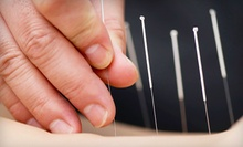 One or Three 60-Minute Acupuncture Treatments at Main Massage Therapy and Acupuncture (Up to 69% Off)