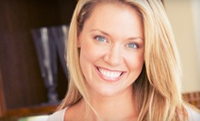 Dental Checkup with Exam, Cleaning, and Optional In-Office Teeth Whitening at 1st Family Dental (Up to 81% Off)