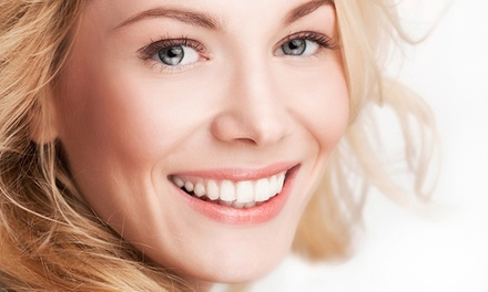 $299 for $2,500 Toward a Complete Invisalign Treatment at Smile High Dental and Facial Spa