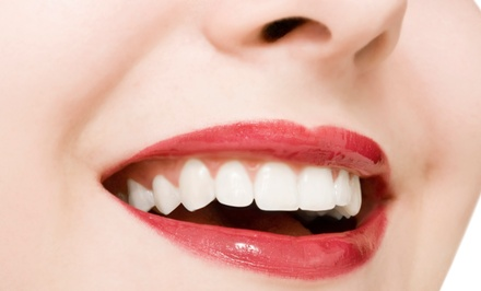 Dental X-Ray, Exam, and Cleaning, or In-Office Teeth Whitening at Newport Smiles Dental Spa (Up to 74% Off)