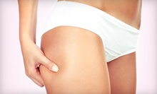 One or Three Lipo Slimming Therapy or Slimming Cellulite Treatments at Yin Beauty & Arts Spa (Up to 72% Off)