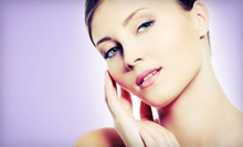 Two, Four, or Six Microdermabrasion Treatments at The Vanity Center in Dunwoody (Up to 81% Off)