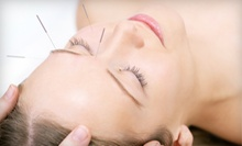 One Acupuncture Session or One or Three Facial Acupuncture Treatments at Chi Harmony Acupuncture (Up to 52% Off)