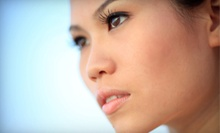 $99 for ProFractional Laser Treatment at Lift Laser & Body ($550 Value)
