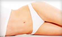 One, Two, or Three Anticellulite Body Wraps from Marc K. Weinberg, DC in North Miami Beach (Up to 69% Off)
