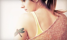Two or Three Laser Tattoo-Removal Treatments at Zormeier Cosmetic Surgery & Longevity Center (Up to 76% Off)