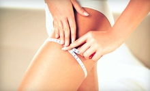 Three or Six VelaShape Body-Sculpting Treatments at The Body Klinic (Up to 72% Off)