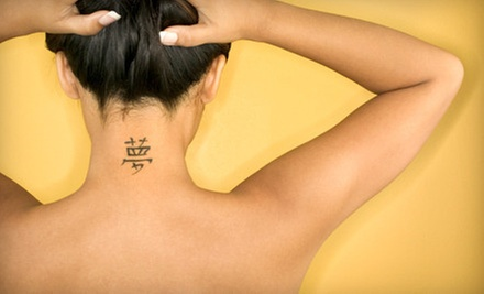Three Laser Tattoo-Removal Treatments at Vanish Laser Tattoo Removal & Skin Aesthetics (67% Off). Four Options.