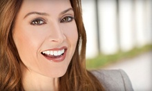 Dental-Exam Package with Optional Teeth-Whitening Trays at Ariyana Dental (Up to 80% Off)