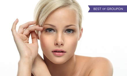 Nonsurgical Lift for the Lower or Upper Face, or Face and Neck at Sonterra Laser Med Spa (Up to 50% Off)