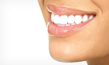 LED or Laser Zoom! Teeth Whitening at ProDental Hygiene LLC at ProDental Hygiene (Up to 75% Off)