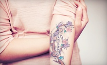 Three Tattoo-Removal Sessions for Tattoos up to 9 Square Inches at Dermatology Laser Center of San Diego (Up to 79% Off)