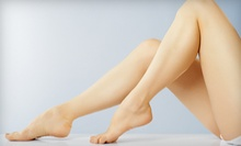 Two or Four Spider-Vein Treatments at Laser Aesthetics & Wellness (Up to 81% Off)