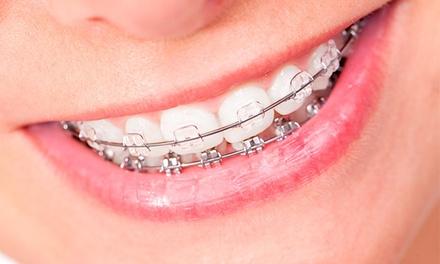 Dr. Rui Lavaredas — Baixa: aparelho dentário metálico ou estético com seis consultas desde 79€