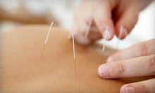 One or Three Acupuncture Treatments with Initial Exam at Dragon Rising Chinese Medicine (69% Off)
