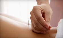 One or Four 90-Minute Acupuncture Sessions at Curadora Acupuncture at Ruby Dot Body & Skin Care (Up to 59% Off)