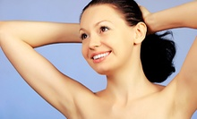 Laser Hair Removal for Small, Medium, Large, or Full-Body Areas at Youngtopia (Up to 86% Off)