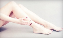 Laser Hair Removal for a Small, Medium, or Large Area at Skin Embrace Medical Spa & Laser Center (Up to 93% Off)