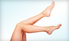 One or Three Sclerotherapy Treatments at Mountcastle Plastic Surgery &amp; Vein Institute (Up to 67% Off)