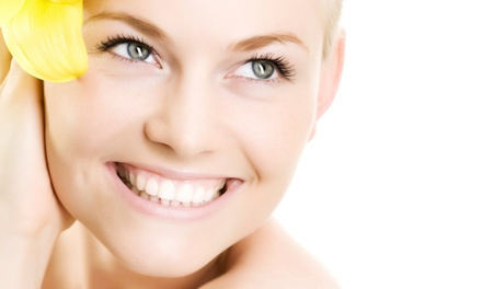 Three Microdermabrasions or One Facial at Winchester Wellness Centre (Up to 59% Off)
