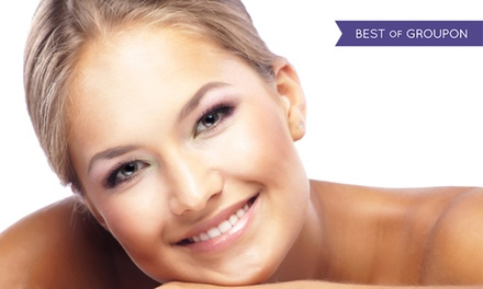 20 or 40 Units of Botox at Luna Vision and Laser (Up to 52% Off)