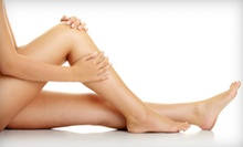 Two or Four Spider-Vein Treatments at A Beautiful You (Up to 74% Off)