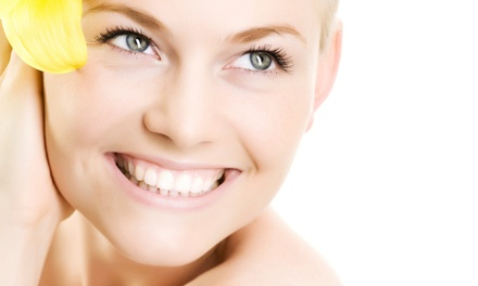 One, Two, or Three Microdermabrasions at Winchester Wellness Centre (Up to 61% Off)