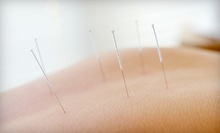 One, Three, or Five Acupuncture Treatments with One Consultation at Inner Light Wellness Acupuncture (Up to 76% Off)